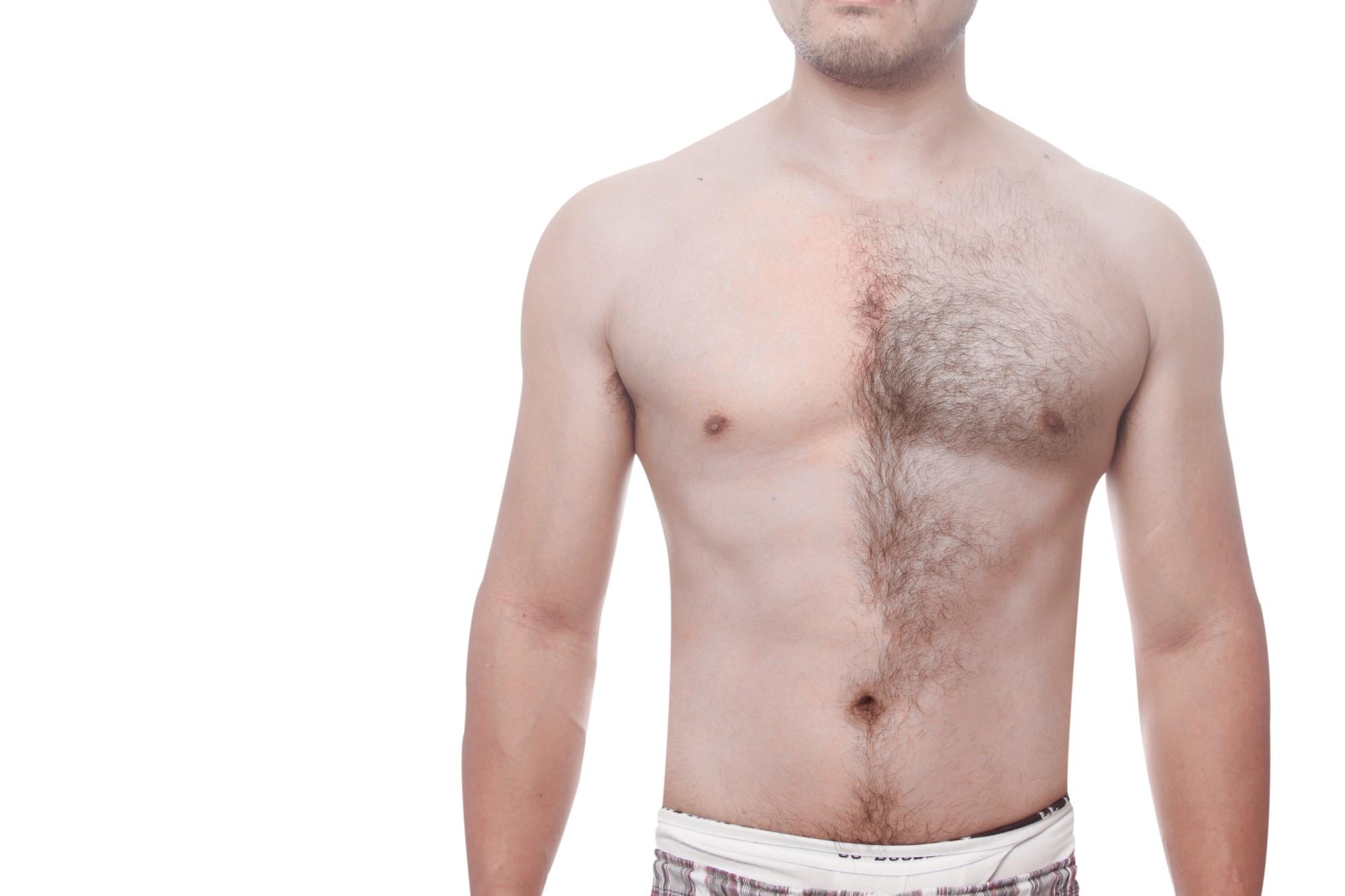 濃いヒゲとおさらばしたい男性必見!原因や対策方法、気になるヒゲ脱毛 ...