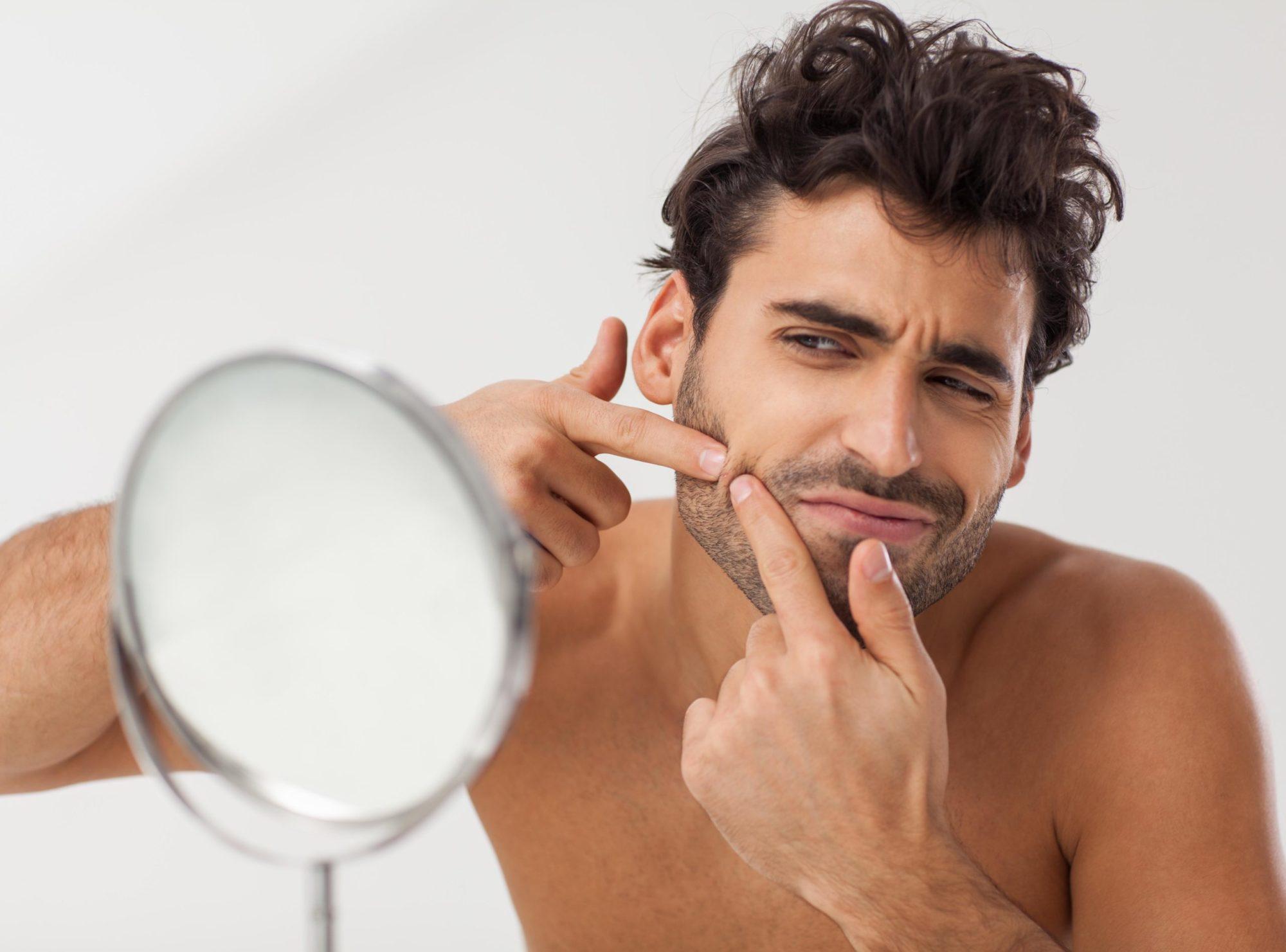 ニキビ 髭 剃り